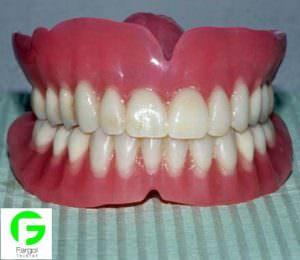 خرید و فروش پرینتر سه بعدی :فرگل سی ان سی دندان15-300x260 فروش پرینتر سه بعدی