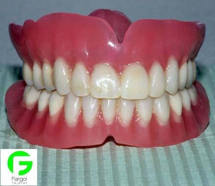 خرید و فروش پرینتر سه بعدی :فرگل سی ان سی دندان15 کاربرد پرینتر سه بعدی در دندانپزشکی پرینتر سه بعدی  کاربرد پرینتر سه بعدی در دندانپزشکی پرینت سه بعدی